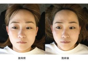 萩施術所の顔面整体施術前後比較